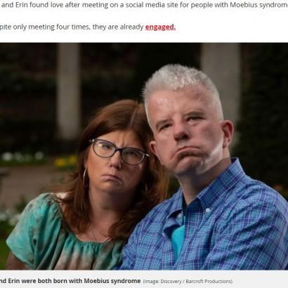 【海外発!Breaking News】笑顔になれない稀な疾患を抱えた男性、同じ病の女性と巡り合う(英)