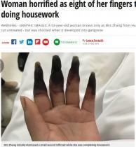 【海外発!Breaking News】小さな切り傷を放置し家事を続けた女性、8本の指が壊疽に(中国)