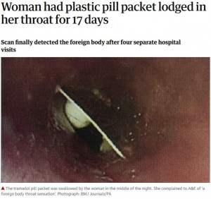 【海外発!Breaking News】17日間、薬のパッケージが喉の奥に引っかかっていた女性(北アイルランド)