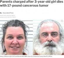 【海外発!Breaking News】7.7kgの腫瘍を抱えた3歳児を放置し死なせた両親、過失致死罪で逮捕(米)