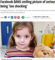 【海外発!Breaking News】稀な病で鼻にチューブを通した少女の写真を「過激」と削除 Facebookに母親怒り(英)