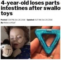 【海外発!Breaking News】おもちゃの中の磁石を13個誤飲した4歳男児、腸の一部を切除(米)