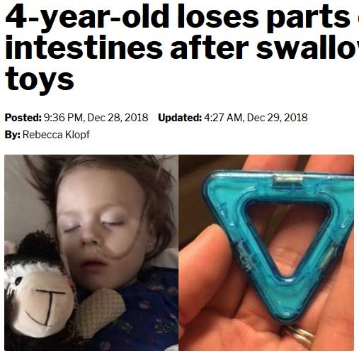 おもちゃの中に入っている磁石を誤飲した4歳児(画像は『TMJ4.com 2018年12月29日付「4-year-old loses parts of his colon, intestines after swallowing magnetic toys」』のスクリーンショット)