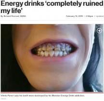 モンスターエナジーを飲み過ぎた男性、全ての歯がボロボロに 歯科医「これまで診た中で最も酷い」(英)