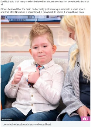 【海外発!Breaking News】脳が2%しかない状態で生まれた男児、80%まで成長し幸せに暮らす(英)<動画あり>