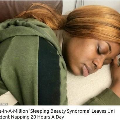 """【海外発!Breaking News】""""眠れる森の美女症候群""""を患う女子大生「3日間で60時間以上眠ってしまうことも」(英)"""