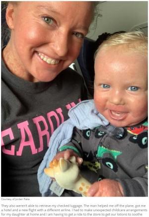 【海外発!Breaking News】先天性皮膚疾患の母子、アメリカン航空CAから心無い対応 降機させられる(米)