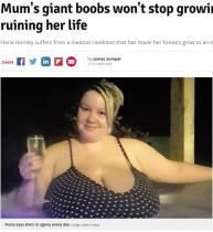 【海外発!Breaking News】巨乳すぎる母 「人生台無し。息子の抱っこも授乳もできない」(英)