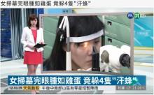 【海外発!Breaking News】眼の中に4匹の生きた蜂 女性の涙を飲んでへばりつく(台湾)