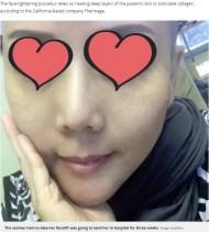 """【海外発!Breaking News】人気の""""プチ整形""""で50代女性、顔面水ぶくれだらけに(台湾)"""