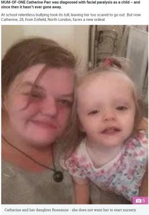 【海外発!Breaking News】「私の顔のせいで娘がいじめに遭ったら…」顔面神経麻痺を患う母親の苦悩(英)