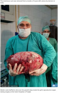 ベテラン医師もその大きさに驚く(画像は『The Sun 2019年4月22日付「GRUESOME GROWTH Doctors remove huge 15kg tumour from inside 16-year-old girl's womb」(Credit: SWNS:SOUTH WEST NEWS SERVICE)』のスクリーンショット)