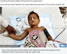 【海外発!Breaking News】180センチの鉄棒が体を貫通した3歳児、奇跡的に助かる(印)