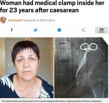 【海外発!Breaking News】23年間体内に手術器具を残存 62歳女性「長年痛みに苦しんだ」と怒り(露)