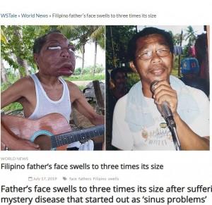 【海外発!Breaking News】副鼻腔炎と診断されるも原因不明 顔が3倍に腫れ上がってしまったフィリピンの男性