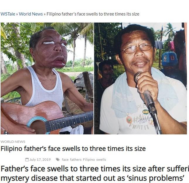 原因不明の病で顔が3倍に腫れてしまった50代男性(画像は『WSTale.com 2019年7月17日付「Father's face swells to three times its size after suffering mystery disease that started out as 'sinus problems'」(ViralPress)』のスクリーンショット)