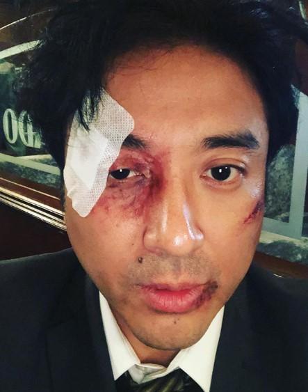 ムロの痛々しい姿(画像は『ムロツヨシ 2019年7月11日付Instagram「ご無沙汰インスタ、ムロツヨシです、ボコボコにされました、」』のスクリーンショット)