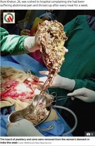 胃の中から摘出されたばかりの金属類(画像は『The Sun 2019年7月25日付「RICH PICKINGS Baffled docs remove £53k worth of jewellery and coins from woman's stomach」(Credit: SWNS:SOUTH WEST NEWS SERVICE)』のスクリーンショット)