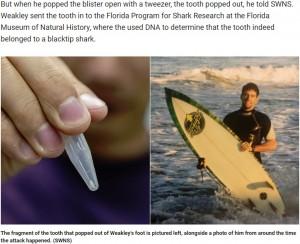 【海外発!Breaking News】サメに襲われた男性、25年後に足からサメの歯がポロリ(米)