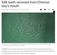 【海外発!Breaking News】7歳男児の口から526本の歯を摘出(印)