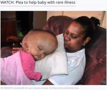 【海外発!Breaking News】「天使は天国へ戻ってしまった」水頭症で頭部96センチの女児、懸命の治療の末死亡(南ア)