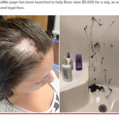 【海外発!Breaking News】何者かがコンディショナーに脱毛剤混入か 21歳女性の髪が悲惨なことに(米)