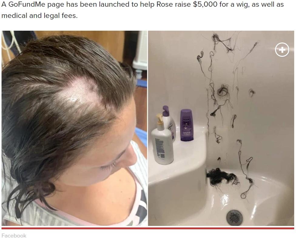 脱毛剤が混入したと思われるヘアコンディショナーを使った女性(画像は『New York Post 2019年8月1日付「Woman loses hair in clumps after Nair allegedly mixed into her conditioner」(Facebook)』のスクリーンショット)