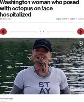 【海外発!Breaking News】タコを顔に載せて写真撮影した女性、噛まれて出血し病院へ(米)