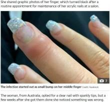 【海外発!Breaking News】「ネイルサロンで道具が殺菌されている確証ない」クリアネイルで重度の感染症に(豪)