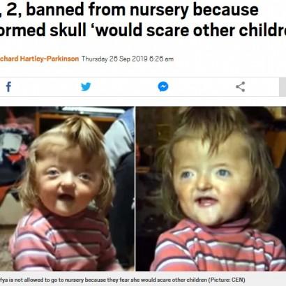 【海外発!Breaking News】「他の子が怖がる」頭蓋骨変形の2歳女児の入園を保育園が拒否(露)