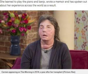 【海外発!Breaking News】顔面移植を受けた女性、顔面崩壊の危機で再度手術へ「未知の世界」(米)