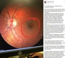 【海外発!Breaking News】レーザーポインターで8歳男児の網膜に小さな穴(英)
