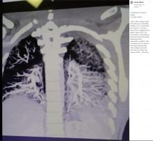 【海外発!Breaking News】香り付き電子タバコ歴2年の19歳 肺は「ベーコンの油がべっとり付いた状態」(米)