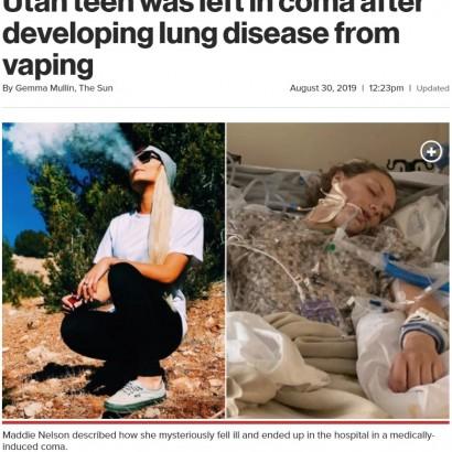 【海外発!Breaking News】電子タバコが原因か 10代少女、肺疾患で生死の境をさまよう(米)