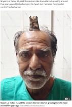 【海外発!Breaking News】頭に「悪魔の角」を持つ男性、除去手術が無事成功(印)