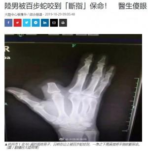 【海外発!Breaking News】毒ヘビに噛まれた指を慌てて切り落とした男性 「その必要はなかった」病院スタッフ(中国)