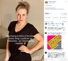 【海外発!Breaking News】ハロウィンで麻疹患者になりきった女性「死亡率は0%に近い」と主張し大炎上(米)