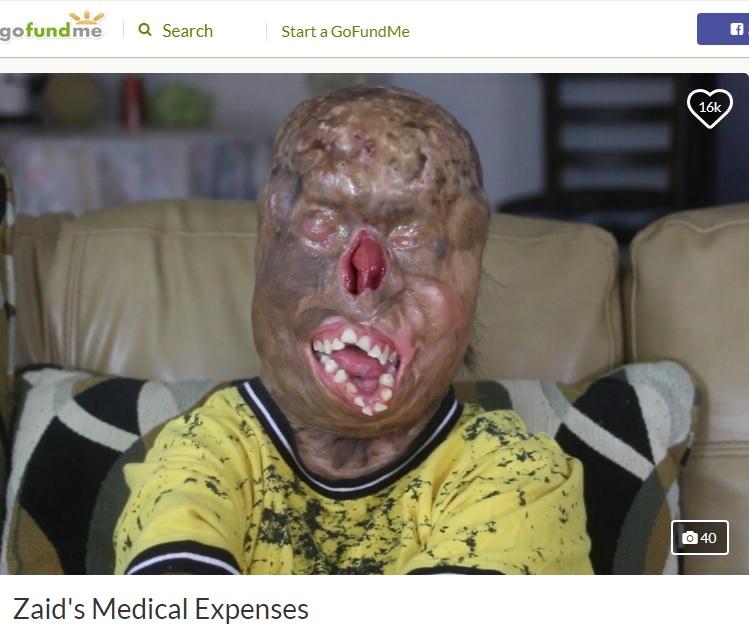 大火傷から奇跡的に助かり16歳になったザイードさん(画像は『GoFundMe 2019年10月15日付「Zaid's Medical Expenses」』のスクリーンショット)