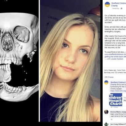 【海外発!Breaking News】落馬した少女 皮膚1センチで繋がった顎が再建される(英)