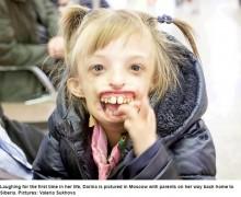 【海外発!Breaking News】生まれつき顎が無かった6歳少女、下顎が形成され初めて笑う(露)<動画あり>