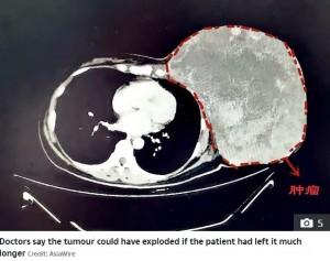 2年間放置されバスケットボールより大きくなった腫瘍(画像は『The Sun 2019年10月24日付「DEADLY DELAY Woman with breast tumour so big she had to hold it up finally goes to hospital after 2 years of herbal 'treatments'」(Credit: AsiaWire)』のスクリーンショット)