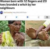 【海外発!Breaking News】足指20本と手指12本を持つ女性「魔女は家にいろ」と言われ続けて63年(印)