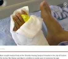 【海外発!Breaking News】9本の左足指を持つ男性、21歳で初手術「両親は多指が幸運をもたらすと信じていた」(中国)