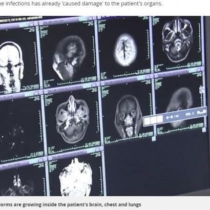 【海外発!Breaking News】男性の脳や肺などから700超の寄生虫 火鍋の豚肉が原因か(中国)