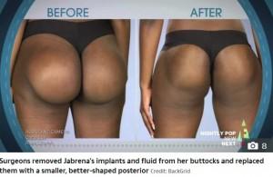 インプラントを入れた状態と再手術後のジャブリナさんの臀部(画像は『The Sun 2019年12月3日付「ROCK BOTTOM Woman left in agony after botched bum implants ROTATED inside her」(Credit: BackGrid)』のスクリーンショット)