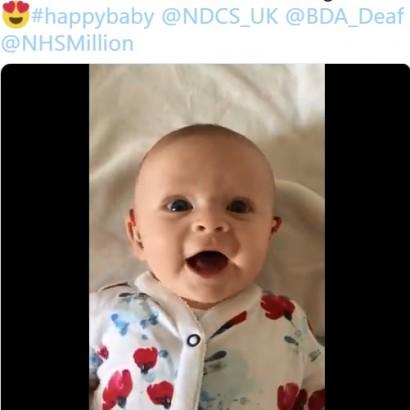 【海外発!Breaking News】聴覚障がいの赤ちゃん、補聴器をつけた時の反応が超キュート(英)<動画あり>