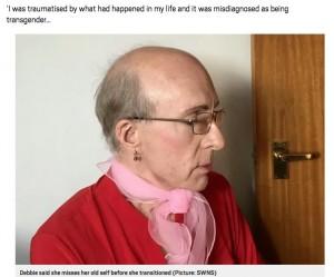 男性の体になったことで頭が禿げあがってしまったデビーさん(画像は『Metro 2019年11月29日付「Woman who transitioned to man starts treatment to be female again」(Picture: SWNS)』のスクリーンショット)