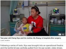 【海外発!Breaking News】転んだ2歳児の頭部に鉄製温度計が突き刺さる(中国)