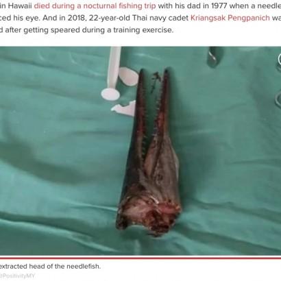 【海外発!Breaking News】釣りの最中に魚が猛突進、16歳少年の首に突き刺さる(インドネシア)