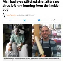 【海外発!Breaking News】治療薬で皮膚が爛れた男性「スティーヴンス・ジョンソン症候群」の壮絶な闘病語る(米)